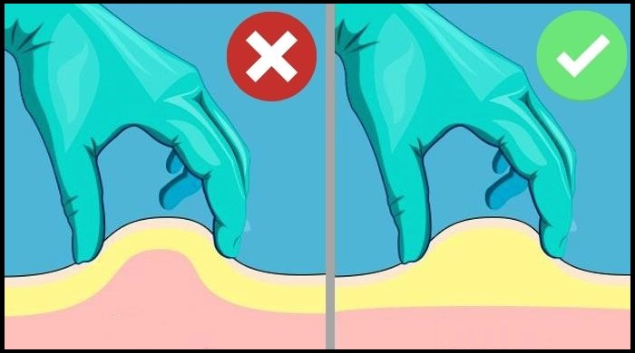 How to to pinch skin for subcutaneous injection